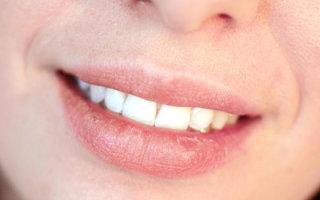 Какие бывают болезни губ и как их эффективно лечить