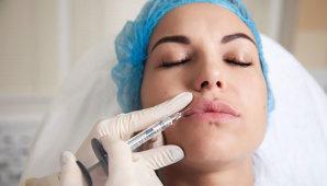 Увеличение губ ботоксом: эффективность и недостатки