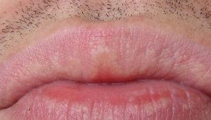 Что такое белые прыщики на губах и как от них избавиться