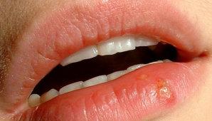 Герпес в полости рта: причины и методы лечения