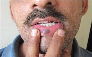 Особенности появления гемангиом на губе и эффективные методы их лечения