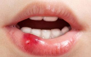 Причиной какого заболевания является прозрачный пузырь на губе