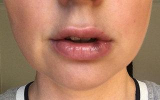 Как убрать синяки и гематомы после увеличения губ