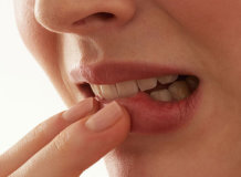 Особенности появления аллергии на губах и эффективные методы лечения