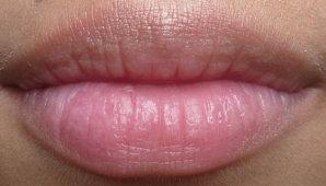 Возможные причины опухания верхней и нижней губы