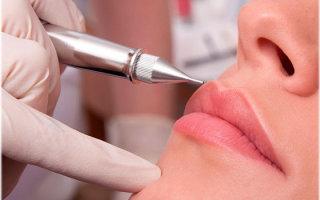 Особенности коррекции перманентного макияжа губ
