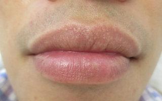 Почему появляются гранулы Фордайса на губах и как их лечить