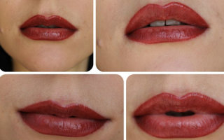 Почему может появиться герпес после татуажа губ и как его лечить