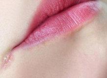 Причины появления заед в уголках рта у детей и как их лечить