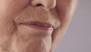 Обзор эффективных методов избавления от морщин вокруг губ