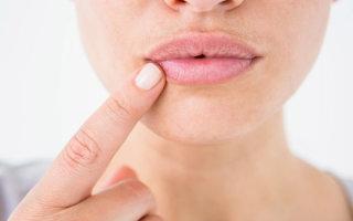 Что такое ангулит: причины появления, виды и особенности лечения