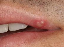 Чем можно эффективно прижечь герпес на губах