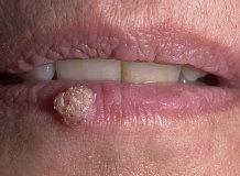 Бородавка на губе: эффективные методы лечения и удаления