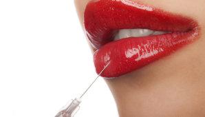 Увеличение объема губ: виды, методы и противопоказания к процедурам