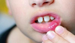 Что такое хейлит на губах (кайма) и как его лечить