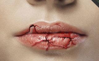 Почему шелушится кожа вокруг рта: обзор внешних и внутренних факторов
