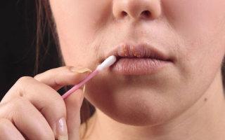 Как незаметно и красиво скрыть герпес (простуду) на губе