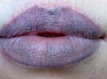 Почему синеют губы и о каком заболевании свидетельствуют