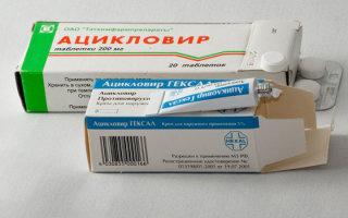 Обзор эффективных препаратов  и средств для лечения герпеса на губах