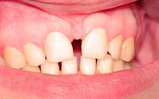 Особенности подрезание уздечки верхней губы