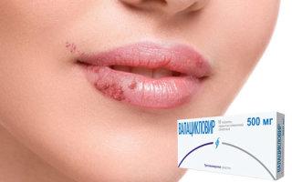 Что помогает от простуды на губах: обзор действенных лекарственных средств