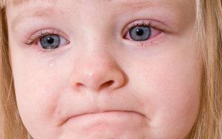 Почему у ребенка сохнут и трескаются губы и как этого избежать