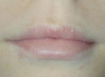 Причины появления жировиков на губах и методы избавления