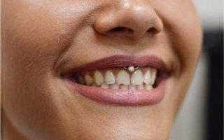 Особенности прокола уздечки верхней губы и возможные последствия