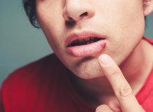 Чем быстро вылечить герпес (простуду) на губе: обзор домашних средств