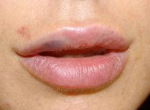 Что делать при разбитой губе и ее опухании изнутри: первая помощь и средства обработки раны