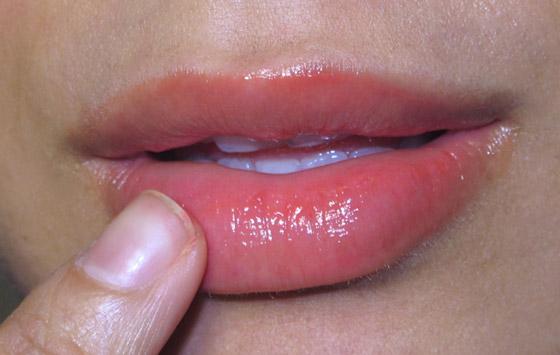 Атопический хейлит на губах