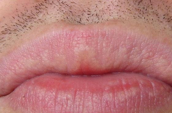 Белые пятна на губе