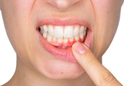 простуда на губе у женщины