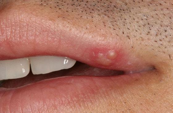 Чем можно прижечь герпес на губах