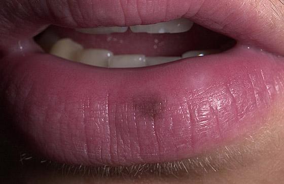 черная точка на губе