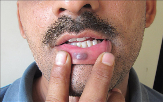 гемангиома на нижней губе