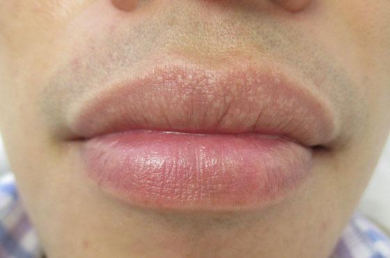 Гранулы фордайса и отек губ