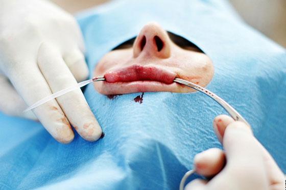 Добавление силиконового импланта
