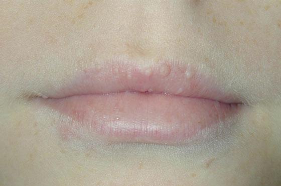 Белые точки на губах
