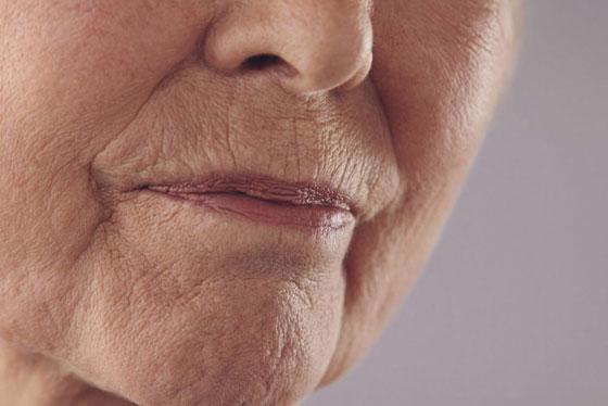 Морщины на лице у женщины
