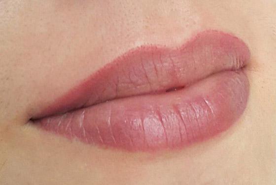 губы после коррекции
