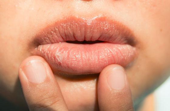 Сухые губы