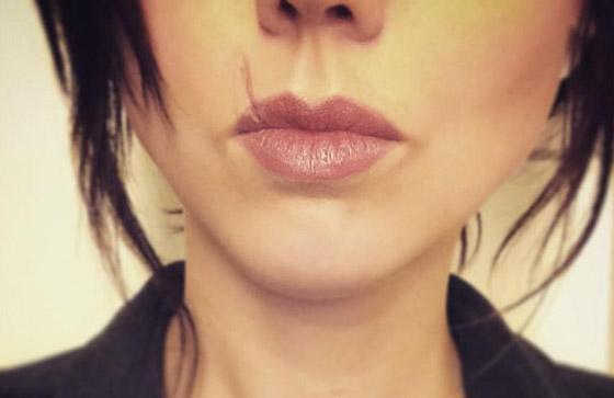 большой шрам на губе