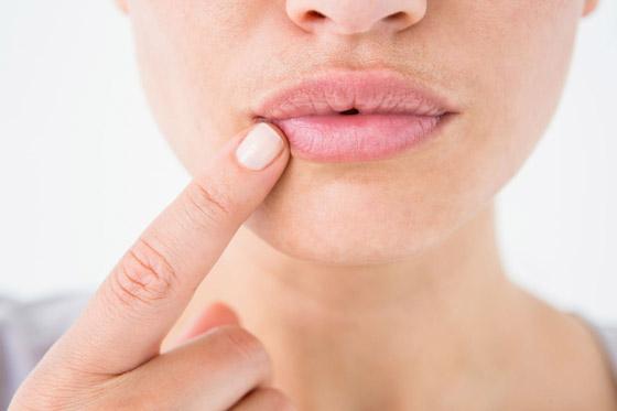ангулит на губе