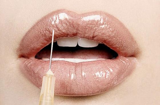 препарат для увеличения губ